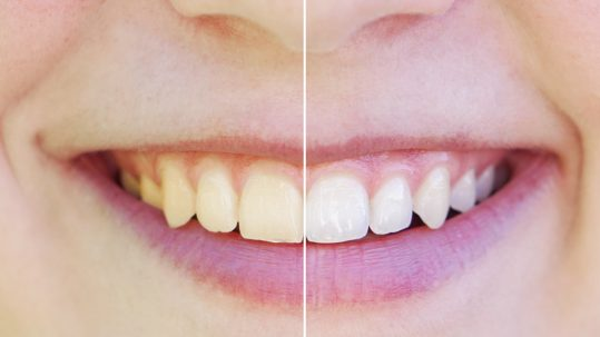 basingstoke dental practice teeth whitening