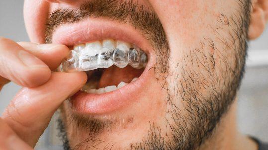 basingstoke teeth straightening